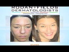 Rodan and Fields Dermatologists Before & After Results  Contact me for more product info! www.angelahlavin.myrandf.com