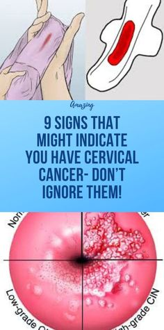 9 Signs That Might Indicate You Have Cervical Cancer- Don't Ignore Them! Health And Fitness Articles, Health Tips For Women, Health Advice, Health And Nutrition, Gum Health, Fitness Diet, Fitness App, Health And Wellness Coach, Natural Health Tips