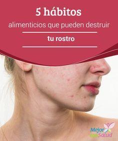 5 hábitos alimenticios que pueden destruir tu rostro  Una mala alimentación puede ser fatal para nuestro cuerpo por muchas razones, pero también para nuestra piel y rostro.