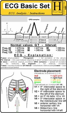 Understand the ECG! Thank you Medical Assistant - St. Augustine School of Medical Assistants, now offering a nationally accredited and certified Medical Assistant program online. Nursing Tips, Nursing Programs, Funny Nursing, Ecg, Nursing Information, Cardiac Nursing, Nursing School Notes, Nursing Schools, New Nurse