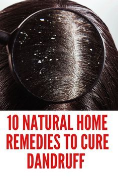 Here are 9 simple home remedies to naturally get rid of dandruff. Try Tea Tree Oil. Use Coconut Oil. Add Apple Cider Vinegar to Your Routine. Try Aspirin. Up Your Intake of Eat More Probiotics. Home Remedies For Tanning, Home Remedies For Dandruff, Natural Home Remedies, How To Treat Dandruff, How To Cure Pimples, Treating Dandruff, Fresh Aloe Vera, Hair Dandruff