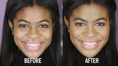 How to Conceal Acne Scarring: Concealing acne scarring is no problem with this easy to follow tutorial.