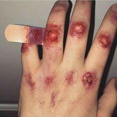 Wound | Blood | Fist