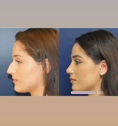 Nose Plastic Surgery, Nose Surgery, Celebrity Plastic Surgery, Thin Nose, Nose Reshaping, Perfect Nose, Rhinoplasty Surgery, Nose Shapes, Nose Contouring