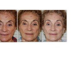 91-year-old woman likes Nerium AD  http://martivoorheis.nerium.com