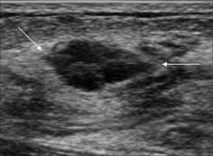 WK 2 BREAST A 40-year-old patient who presented with palpable left breast: Ultrasound image shows hypoechoic microlobulated mass with parallel orientati...