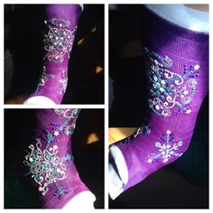 Decorated ankle cast with Bling..Snowflakes❄️ Let it Go!