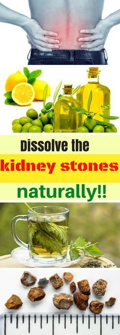 Kidney stones are small and hard mineral deposits that are formed inside the kidneys. They are made of mineral and acid salts. Everyone can be affected no matter the age but the kidney stones are most common in men in their 40s and 30s.