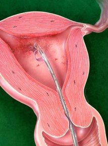 Natural Cure For Adenomyosis