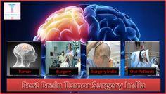 Who Needs Brain Tumor Surgery?