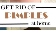 get-rid-of-pimples-at-home