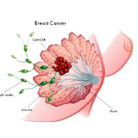 Cancer consult India is the best name in treatment for breast cancer in Noida, Delhi-Ncr, India with a promise of quality treatment services.