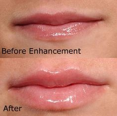 Subtle and natural lip enhancement #beautiful #juvederm #results