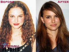 Celebrity Nose Job Pictures - Photos of Stars Before and After Rhinoplasty