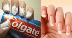 Did you know that toothpaste can help you do so much more than just cleaning your teeth? Continue reading the article below to learn 20 amazing toothpaste tricks! Silver polish Silver cleaning costs a lot, but you should know that you can clean your tarnished silver items safely with toothpaste. Just rub some of it […]