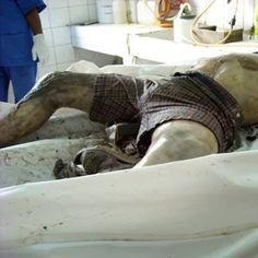 CAMEROUN :: Recrudescence du phénomène de mutilations des corps à Bertoua :: CAMEROON