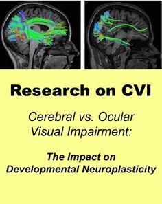 Research on CVI -- Cerebral vs. Ocular Visual Impairment:  The Impact on Developmental Neuroplasticity