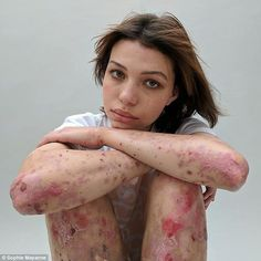Sophie Mayenne has launched a project to change the perception of scars Featuring portraits and stories from those who've hidden their wounds She hopes the project entitled 'Behind The Scars' will have a positive impact The stories behind their scars:   #bodies #bodyimage #diseases #mentalhealth #photographyprojects #projects #scarification #scars #selfharm #skin #tattoos