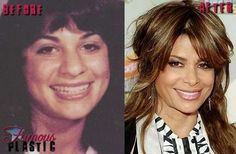 Paula Abdul before and after plastic surgery