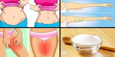 Baking Soda to Burn Belly Fat, Thigh and Back Fat Belly Fat Burner, Burn Belly Fat, Équilibrer Les Hormones, Sumo Natural, Lose Weight, Weight Loss, Lose Fat, Herbal Remedies, Natural Remedies