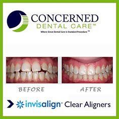 #beforeandafter #invisalign #straightteeth #smile #bestdentist #dentistnyc
