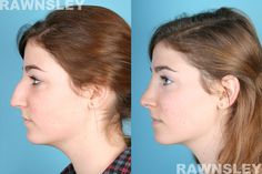 This 18 year old Los Angeles resident approached Dr. Rawnsley for a rhinoplasty consultation. She'd previously broken her nose and was left with a nose that pointed one way while her face pointed the other. She was ready for a change...