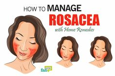 How to Get Rid of Rosacea with Top 10 Home Remedies