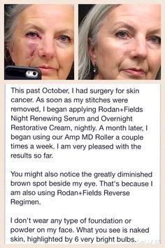 What an AMAZING story#rodanandfields#randf#skin#scar