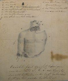 Een stuk ellebeen en de rechterbovenarm: wat overbleef van Jan van Speijk - BHIC
