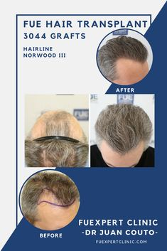 Before After 3044 FUE Grafts - FUE Hair Transplant - Dr Couto - FUExpert  Clinic -