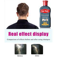 Cutelove Anti-hair Loss Shampoo Natural Ingredient Based Effective Solution Hair Growth Serum Hair Loss Shampoo for Men & Women - Floz Anti Hair Loss Shampoo, Natural Shampoo, Hair Shampoo, Grow Natural Hair Faster, Natural Hair Growth, Scalp Moisturizer, Mens Shampoo, Healthy Scalp, Hair Rinse