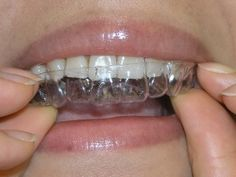 """""""Invisalign"""" straightens your teeth right before your eyes!"""