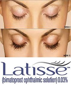 Pacientes Reales con Latisse® Original. Tel: 011-57781682 www.palermomedicinaestetica.com