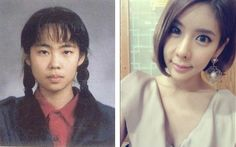 30 Startling Before and After South Korean Plastic Surgery Pictures South Korean Plastic Surgery, Face Plastic Surgery, Plastic Surgery Pictures, Plastic Surgery Gone Wrong, Plastic Surgery Procedures, Celebrity Plastic Surgery, Carpe Diem, Eyebrow Lift, Oily Skin Treatment