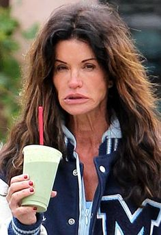 Failing the taste test: Celebs like Jennifer Aniston, left, favour juice diets but Janice Dickinson looks unimpressed by her green smoothie Varicose Vein Removal, Varicose Veins, Cellulite, Teen Mom News, Plastic Surgery Gone Wrong, Janice Dickinson, Celebrities Before And After, Ugly To Pretty, Celebrities