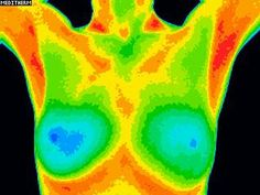 Lumpy Breasts? Cure Breast Cysts