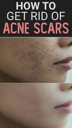 Pimple Marks, Acne Marks, Getting Rid Of Scars, Scar Remedies, Home Remedies For Acne, Best Skin Care Regimen, Skin Care Tips, Anti Ride, Acne Spots