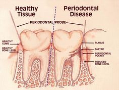 Orthodontics creates healthy smiles and makes flossing and keeping your teeth clean easier.   www.irvinevillagesmiles.com