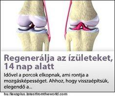 abano terme arthrosis kezelés
