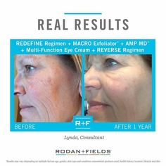 Wow! I only realized the change when I saw the before and after pictures side by side. I used the REVERSE and REDEFINE Power Pack plus REDEFINE Multi-Function Eye Cream. The RF products have melted away years of sun damage and wrinkles. I am a true believer!  R  F Consultant Lynda Best.  Who's ready for your their own before and after? #rodanandfields #rf #rfaustralia #REDEFINE #REVERSE #macroe #multifunctioneyecream #ampmd #ilovemyjob #lovetheskinyourein #60daymoneybackguarantee by…