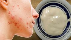 Homemade Acne Mask - Different Forms of Masks for Acne ** Be sure to check out this helpful article. #HomemadeAcneMask