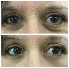 """Miraclelift """"Plastic Surgery in a Bottle"""" is an extraordinary skin solution that tightens sagging skin to visibly lift as it smoothes creases and wrinkles. Eye Tricks, Under Eye Bags, Love Your Skin, You Look Beautiful, Sagging Skin, Puffy Eyes, Plastic Surgery, Beauty Hacks"""