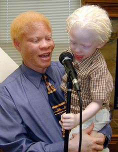 Black people can be albino too. Albinism results from a recessive gene in both parents that results in a lack of melanin in their child. at one time, albinos were considered evil and were even hunted or persecuted in some countries. I find them all unique and beautiful.