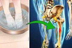 ülőideg Sciatica, The Cure, Health, Home, Health Care, Salud