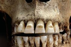 The Vikings filed decorative grooves into their teeth to scare their enemies