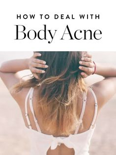 The fix for treating spots on your back is usually much easier than, say, hormonal zits along your chin. Here's how to deal with body acne.