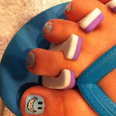 What a fun way to celebrate getting braces! Orthodontic Humor, Getting Braces, Brace Face, Prevent Ingrown Hairs, Skin Care Remedies, Aloe Vera Gel, Cute Nails