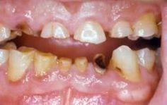 Le #bibitegassate dolci danneggiano i denti come #cocaina e #anfetamina http://jedasupport.altervista.org/blog/attualita/sanita/salute-sanita/bibite-gassate-dolci-danneggiano-denti/