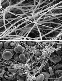 Fibrin clots. A. Electron micrograph of clot formed by addition of thrombin to purified fibrinogen.  Magnification bar, 5μm. (Image from Weisel, 2004b.) (B) Electron micrograph of whole blood clot, made from freshly drawn blood with no additions. Fibrin fibers commonly originate from platelet aggregates and erythrocytes and leukocytes are trapped in the meshwork. Magnification bar, 10μm.