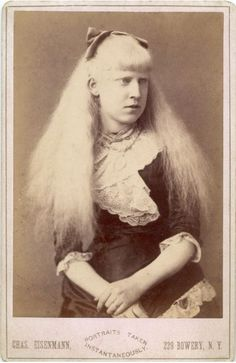 1000+ images about Angels Among Us on Pinterest | Albinism ...